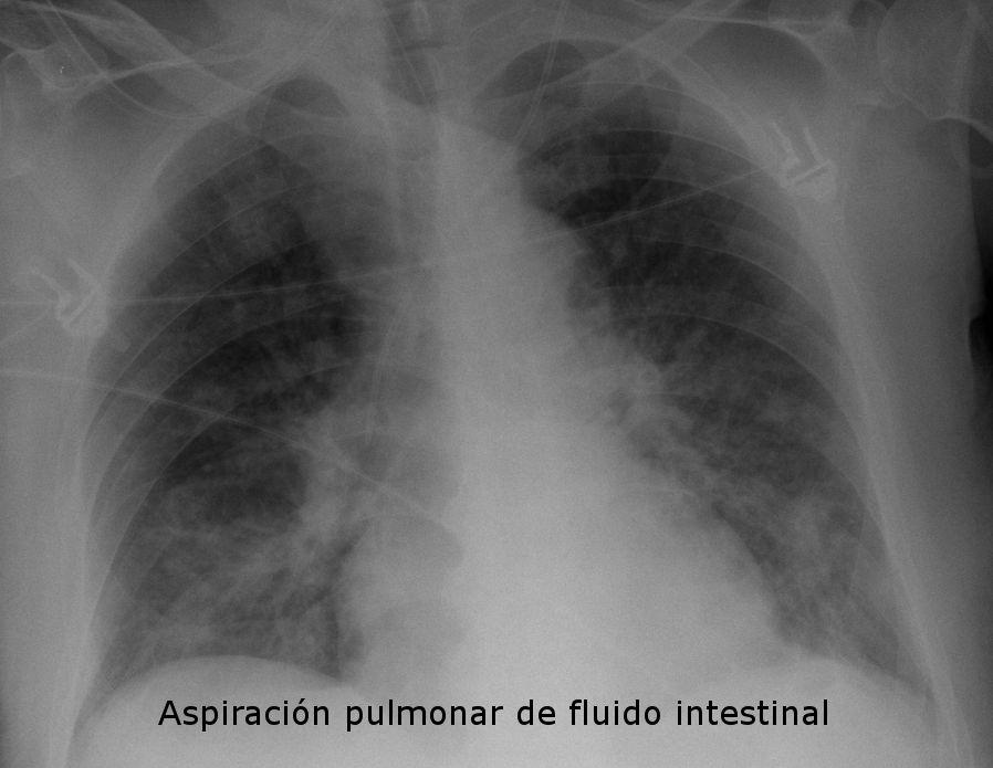 Rx de torax con aspiración pulmonar.