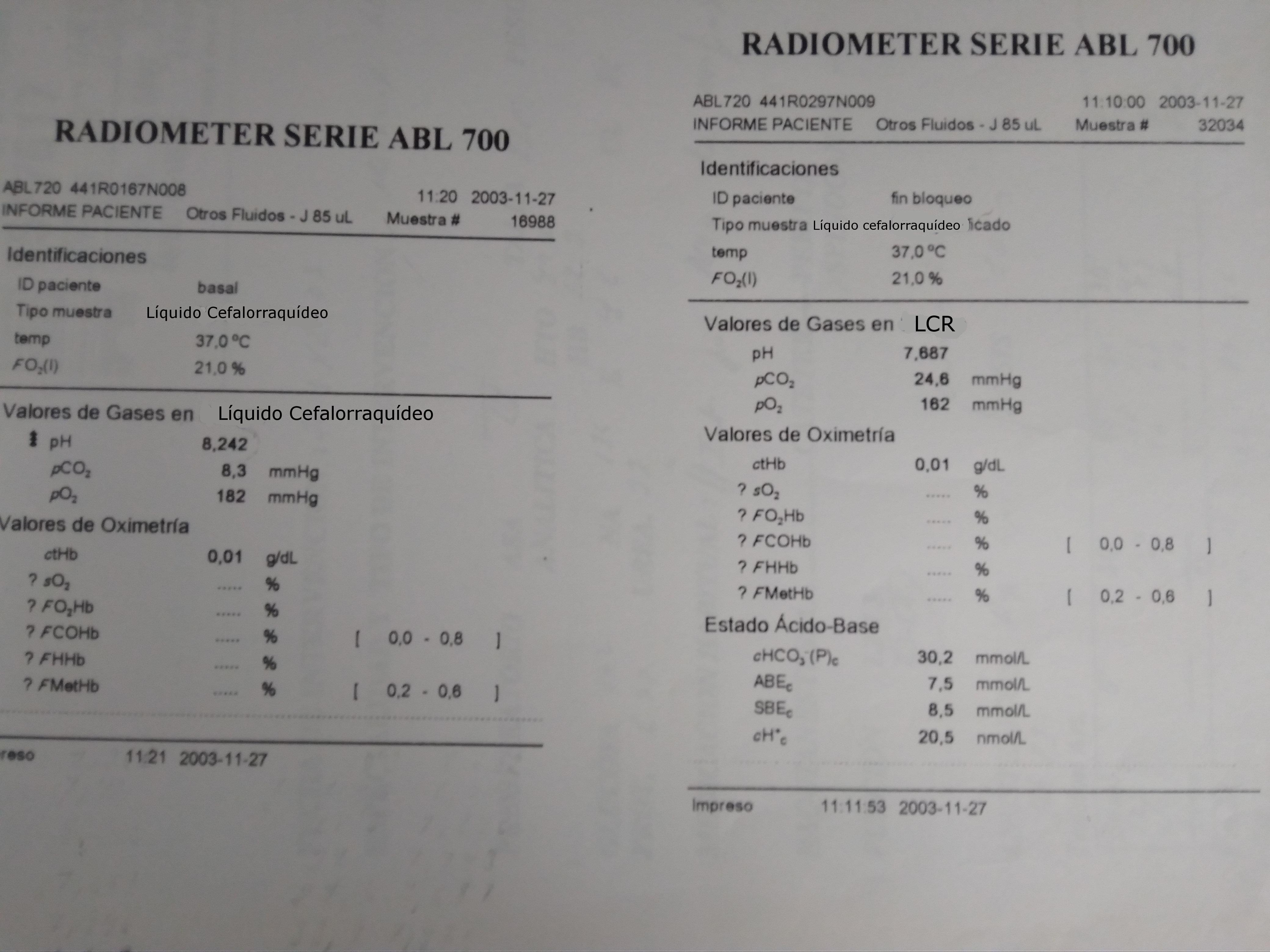 Gasometría de LCR. CSF gasometry.