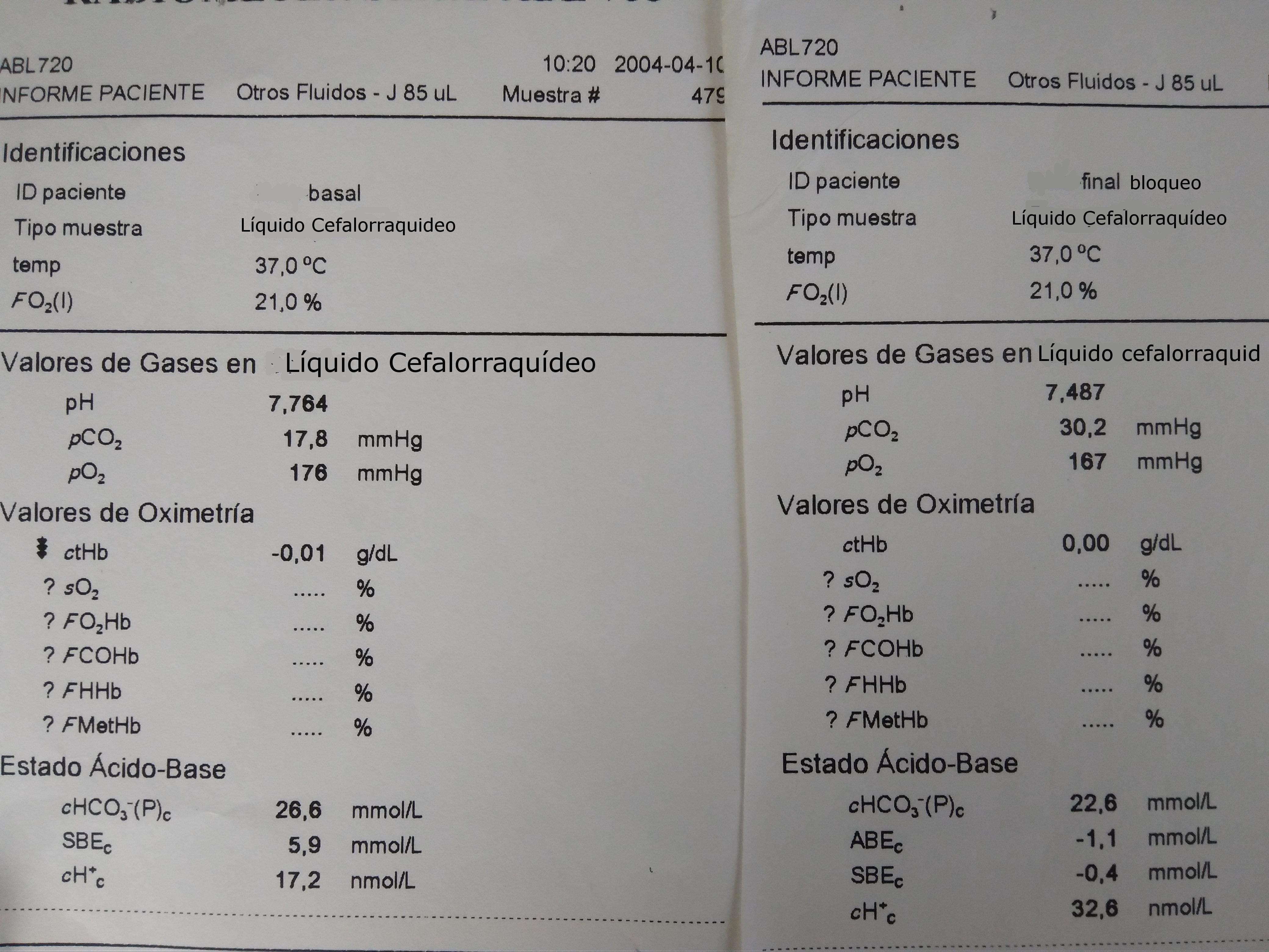 Gasometrías de LCR. CSF gasometries.